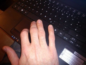 Hand an Laptop